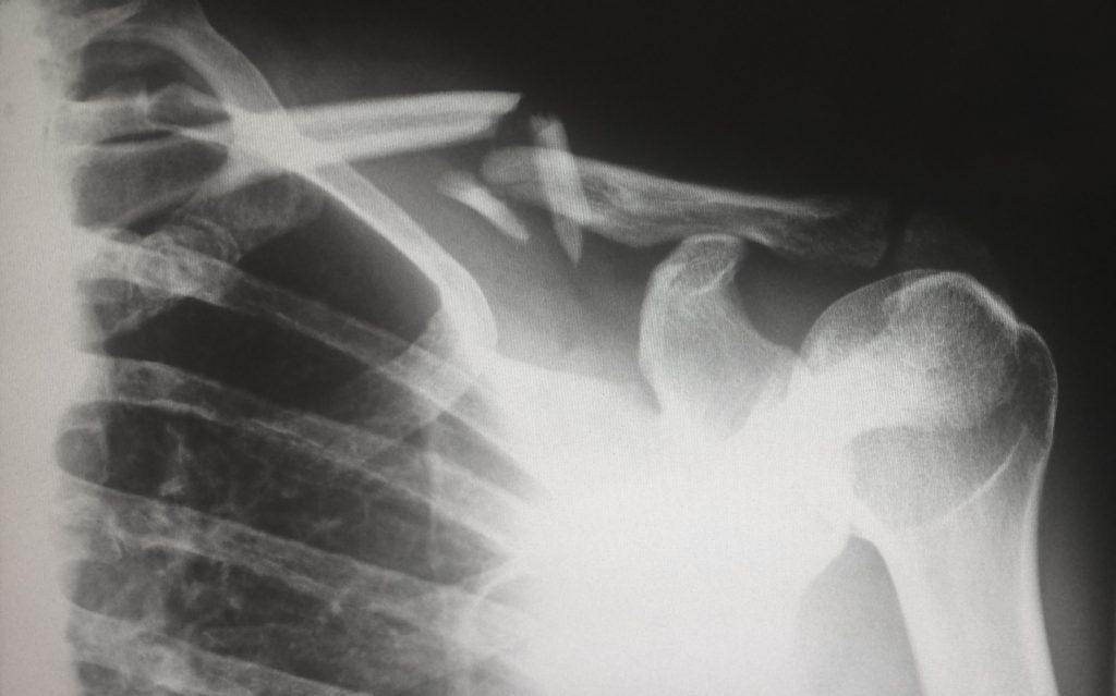 Nemoc způsobuje bolest, jako by vám někdo lámal kosti Kam se hrabe koronavirus: 5 nejnebezpečnějších virů planety